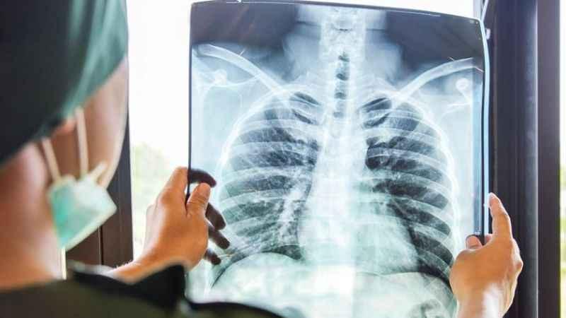 Akciğer kanserlerinin yaklaşık %20'sindecerrahi ile tedavi mümkün
