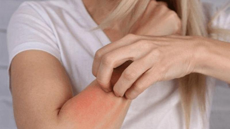 Kırmızı et alerjisi belirtileri, teşhisi ve tedavisi