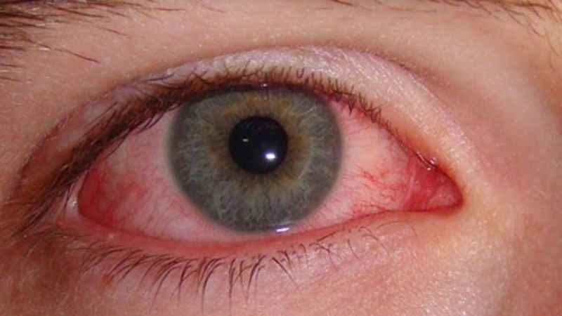 Bilinçsiz havuz kullanımı göz sağlığını bozabiliyor