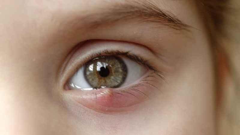 Geçmeyen arpacık göz bozukluğu işareti olabilir