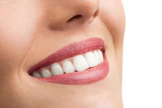 Güzel gülümseme  özgüveni artırıyor