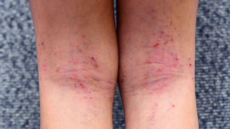 Mevsim geçişlerinde alerjik egzamaya dikkat
