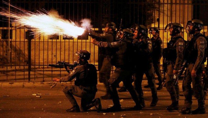 AA Orta Doğu Editörü Turgut Alp Boyraz İsrail polisinin saldırısında yaralandı