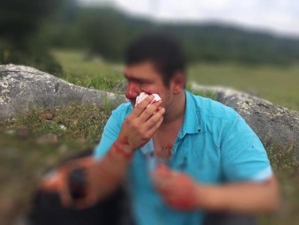 İHA muhabirine saldıran şahıs İYİ Partili Lütfü Türkkan'ın öz yeğeni çıktı