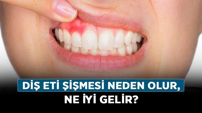 Diş eti şişmesi neden olur, ne iyi gelir? Diş eti şişmesine doğal çözüm nelerdir? İşte tedavi yöntemleri!