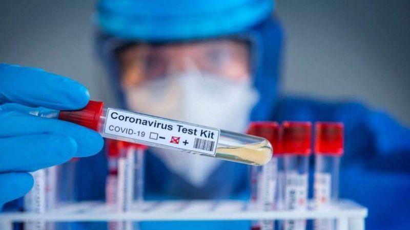 2 Ağustos koronavirüs tablosu!