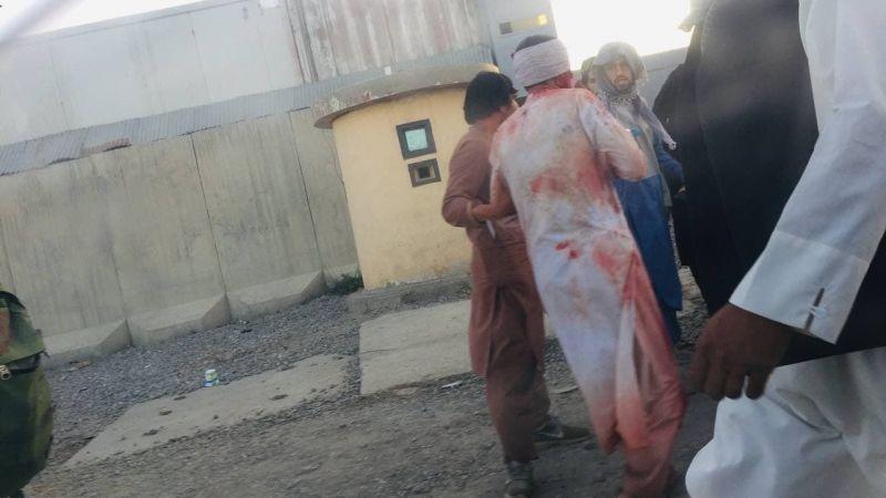 Kabil Havalimanı'nın dışında büyük patlama: 90 ölü 150 yaralı!