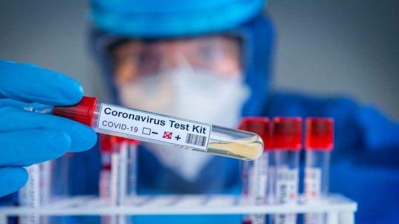 17 Eylül koronavirüs tablosu!