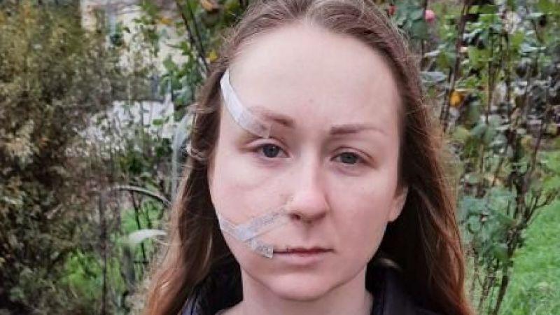 Eşinin falçatalı saldırısına uğrayan Hanna: Korkmuyorum yaşamak istiyorum