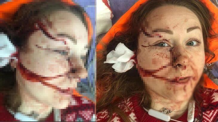 Eski eşi yüzünü falçatayla paramparça etmişti! Eski eşe 11 yıl hapis cezası verildi