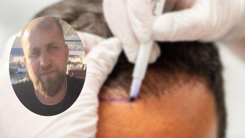 İstanbul'da saç ekimi sırasında öldü: Memleketi Şanlıurfa'da defnedildi!