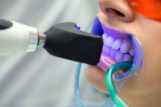 Diş beyazlatma tedavisi nedir?
