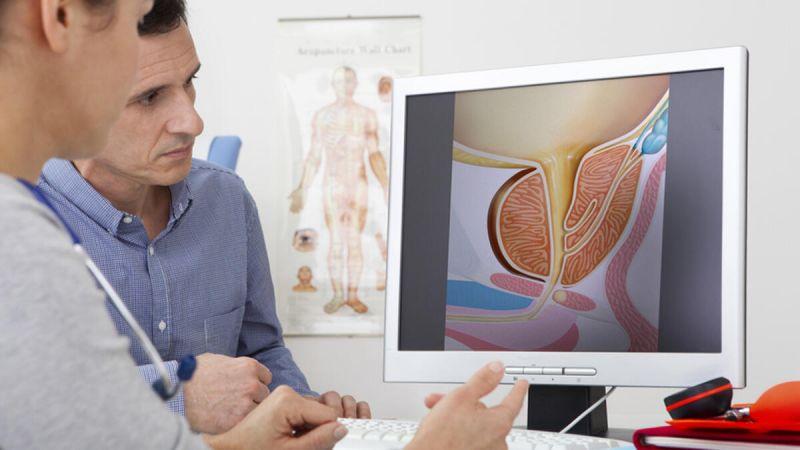 İdrar şikayet ve bulguları prostatta yol gösterici