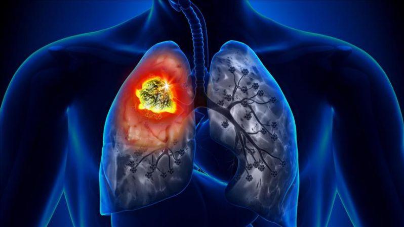 Akciğer Kanseri Uyarısı!