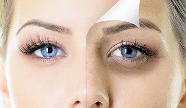 Göz altı morlukları için 4 etkili çözüm!