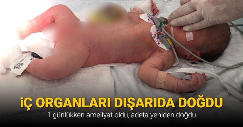 İç organları dışarıda doğan bebek 1 günlükken ameliyat oldu