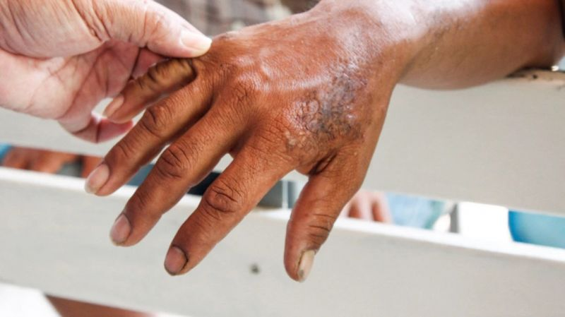 It has been reported that leprosy is transmitted by respiration, not touch
