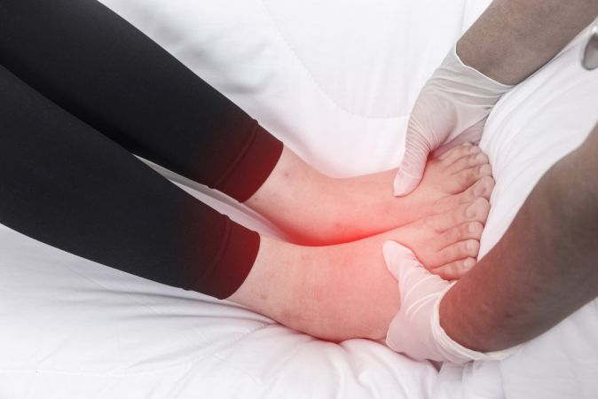 Reduction of edema formation closely related to nutrition