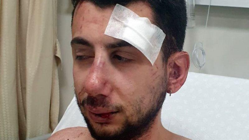 Kız arkadaşını korumak isterken muştayla dövüldü