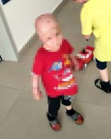 Yangında annesini kaybedenOkay'ın iki eli, bileklerinden kesildi