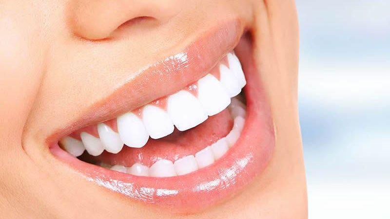 İmplant Diş Tedavisi Nasıl Yapılır?
