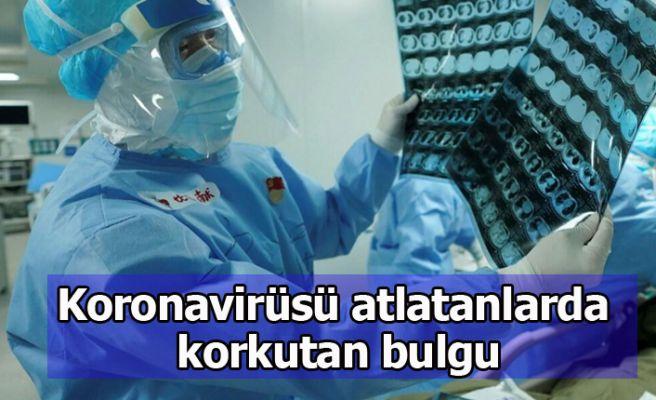 Koronavirüsü atlatanlarda korkutan bulgu