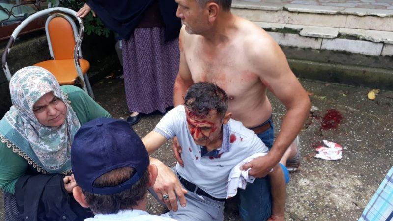 Kocaali'de kaza: 1 yaralı