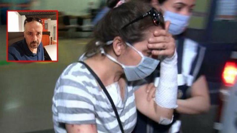 Kahramanmaraş'ta şok olay: Erkek arkadaşını yüzüne kezzap attı, tahliye edildi!