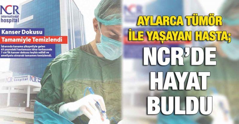 Aylarca tümör ile yaşayan hasta; NCR'DE HAYAT BULDU