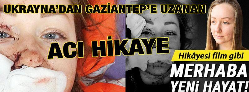 Boşanmak İstedi..Yüzü Falçatayla Kesildi...Ukrayna'dan Gaziantep'e Uzanan Acı Hikaye