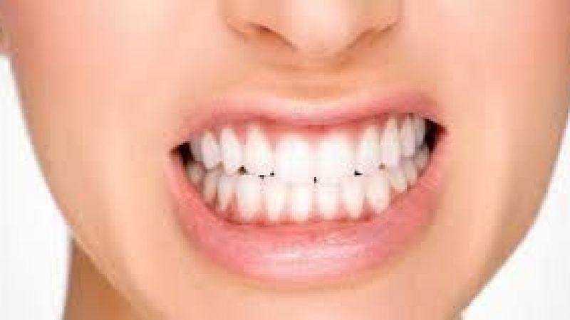 Uyurken diş sıkmak yüz genişlemesi nedeni