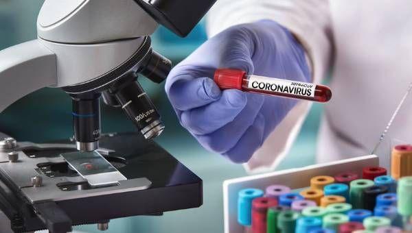 Koronavirüs salgınında günlük vaka sayısı 4 bin 883 oldu