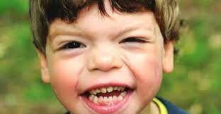 Williams Sendromu nedir? Belirtileri nelerdir?