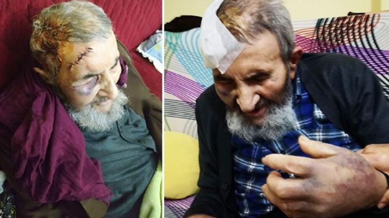 Vicdansızlığın böylesi: İstanbul'da 93 yaşındaki adamı öldüresiye döverek parasını çaldılar!