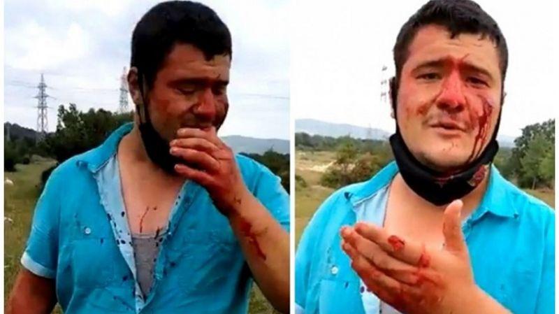Saldırıya uğrayan İHA muhabirinden Lütfü Türkkan açıklaması