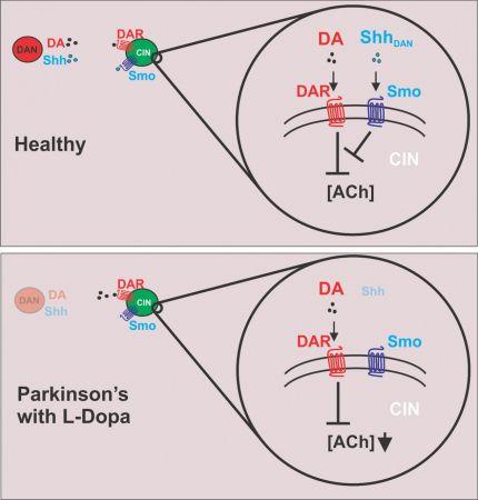 Sonic kirpi protein yolu stimülasyonu parkinson'ın hastalarına yardımcı olabilir