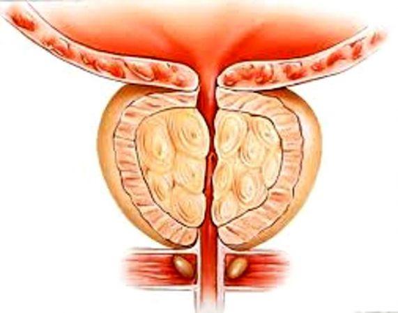 Prostat Ameliyatı Yöntemleri Nelerdir?