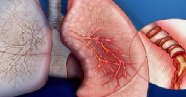 Akciğer Kanserinin Nedenleri Nelerdir? Ve Belirtileri...