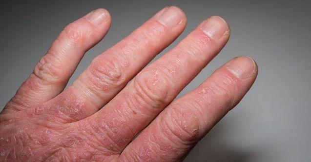 Bilmeniz Gereken 10 Psoriatik Artrit Belirtileri