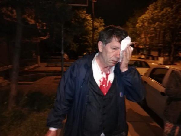 Bir gazeteciye saldırı, 3 gazeteci gözaltında