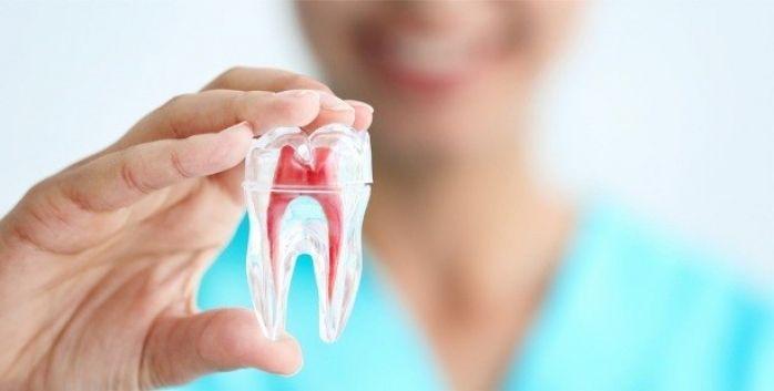 Kanal Tedavili Dişe Beyazlatma