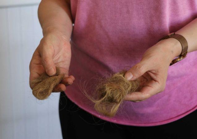 Gaziantep'te kadın hasta hemşireye saldırdı, saçlarını yoldu